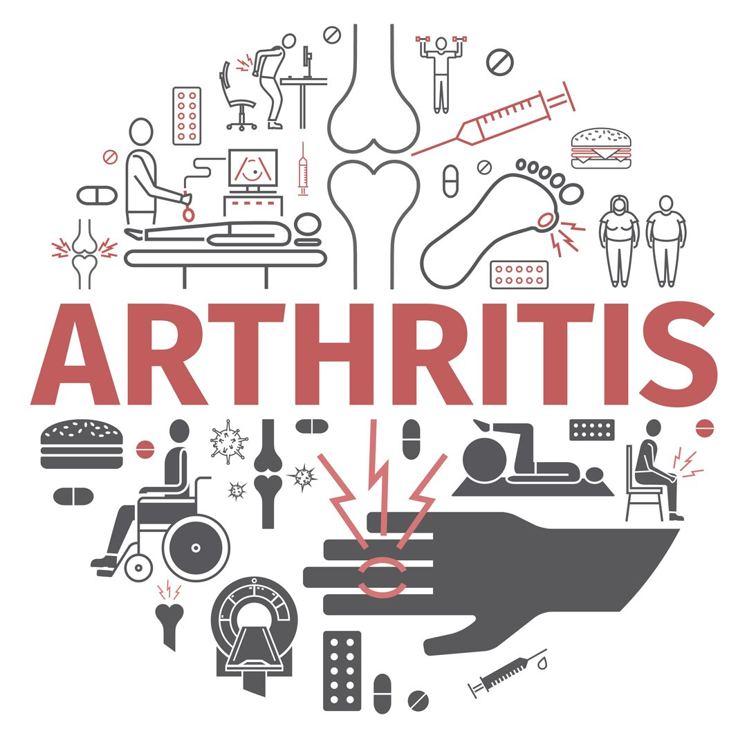 What can CBD do for Arthritis?