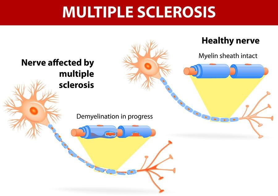 Can Cannabis Treat Multiple Sclerosis? | Medical & Recreational Marijuana News & Articles
