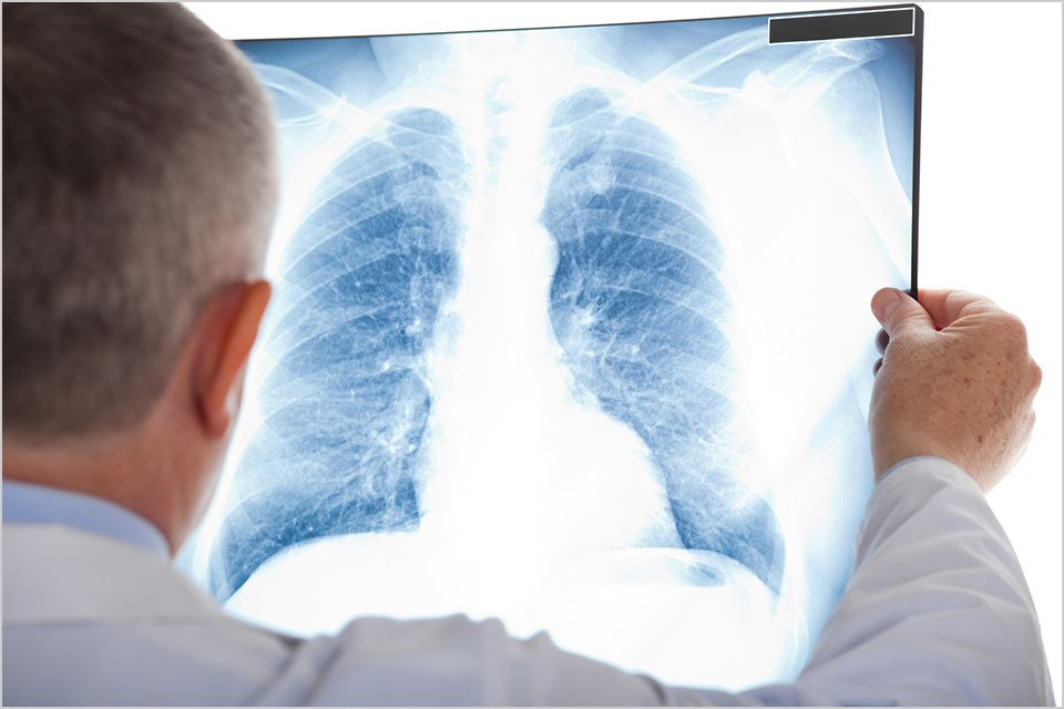Study: Cannabis Smoke Exposure Doesn't Significantly Impact Lung Health - NORML